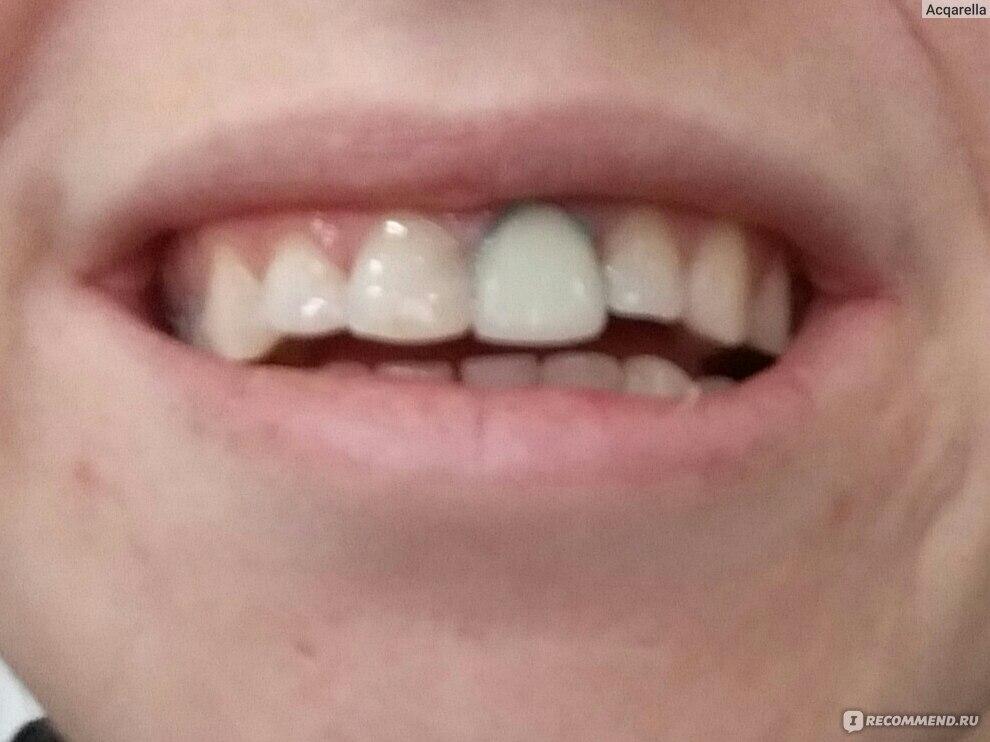 Коронки на зубы нерв удалять