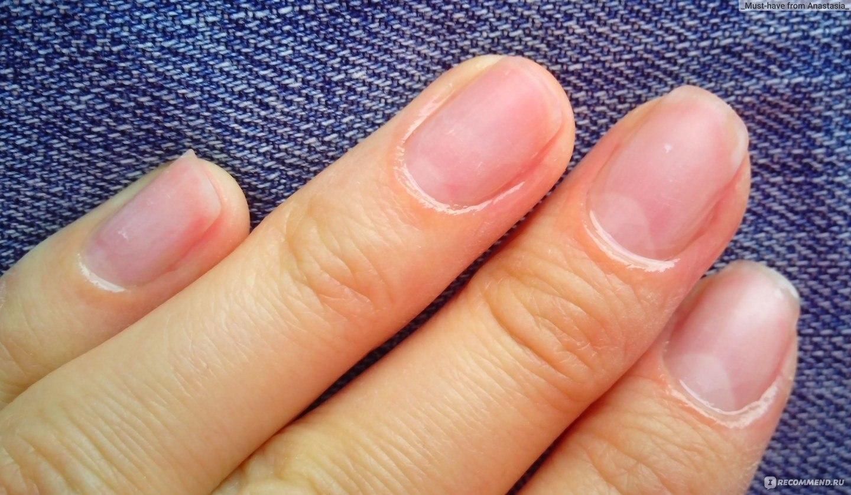 Как быстро привести в порядок кожу вокруг ногтей