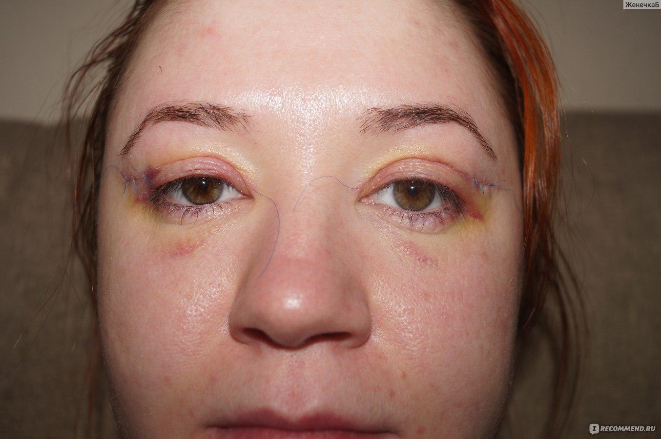 Как снять отёчность с глаз в домашних условиях 175
