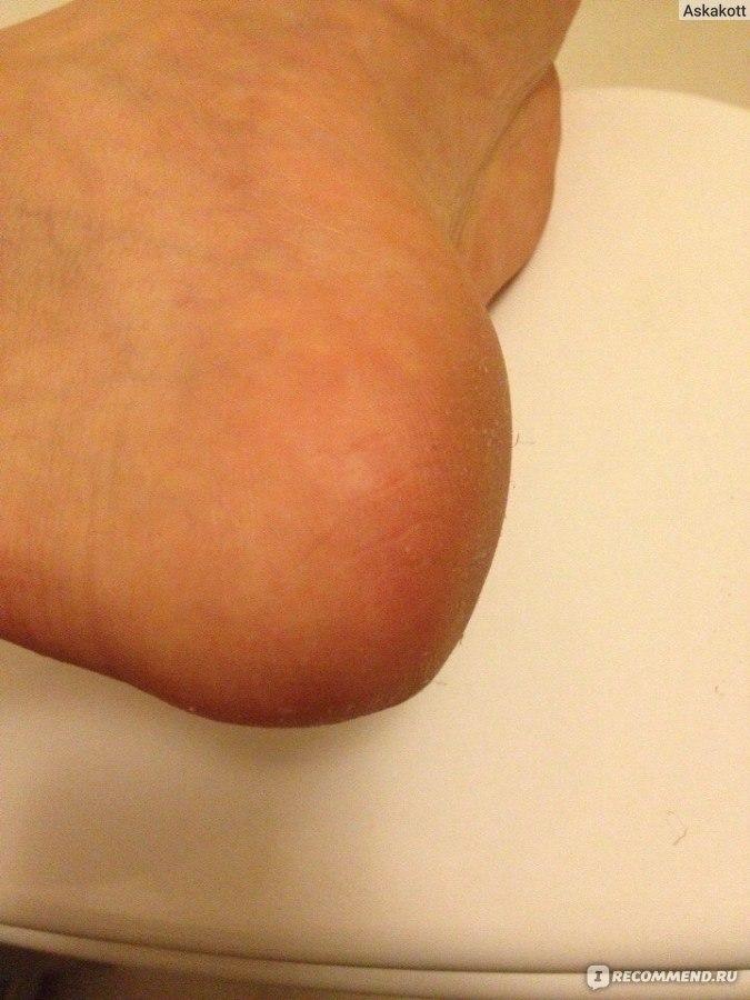 AquaPiling Раствор для ног