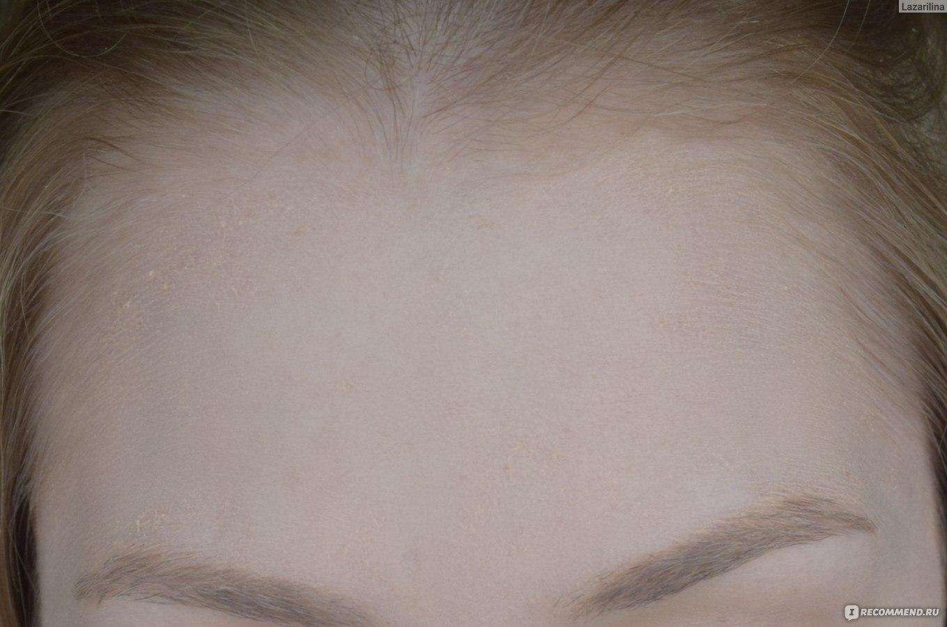Как сделать линию роста волос на лбу ровной