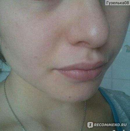 Корректор для лица с проблемной кожей