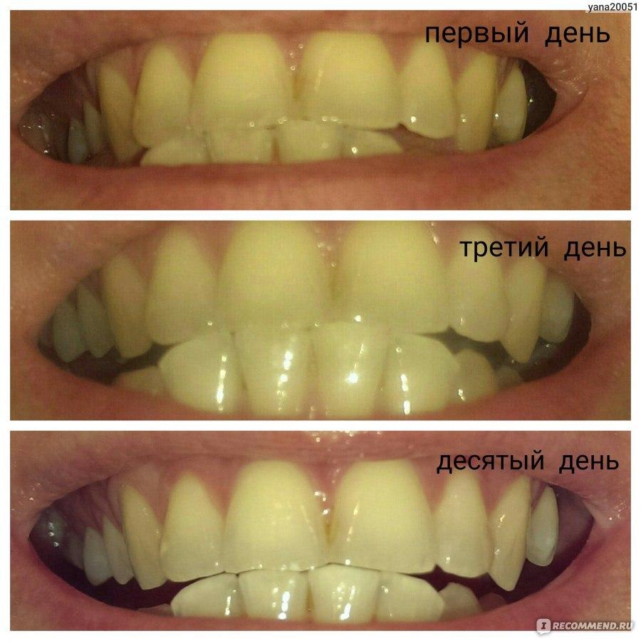 Желтая полоса на зубах что это