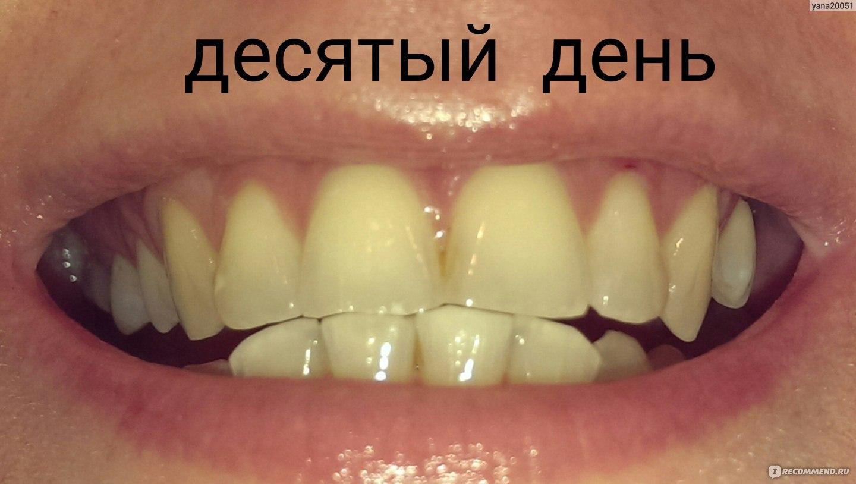 whitening полоски отбеливания зубов