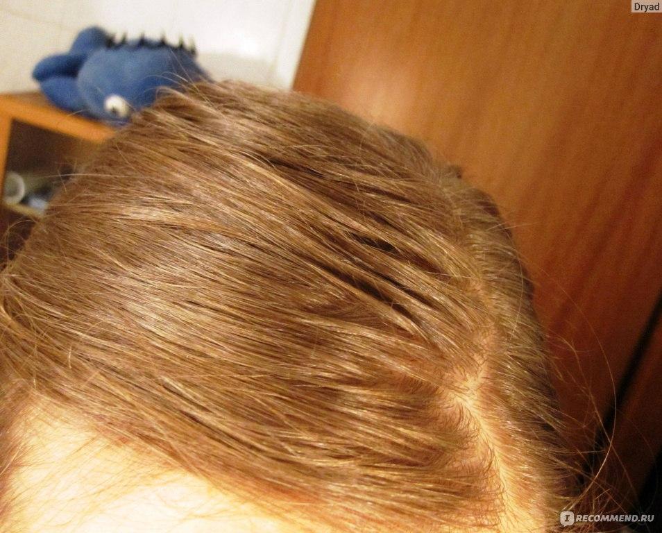 Мытье волос содой форум