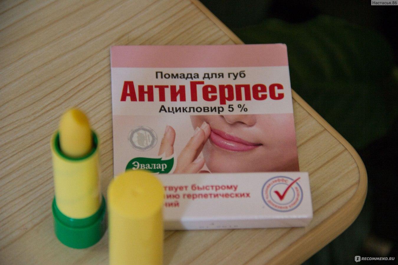 Лечение герпеса на руках в домашних условиях