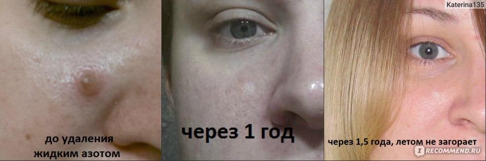 Удаление невусов на лице отзывы