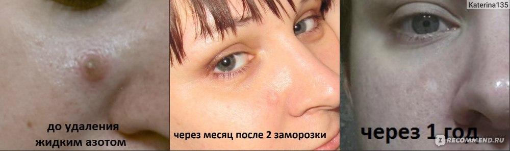 Удаление невуса на голове