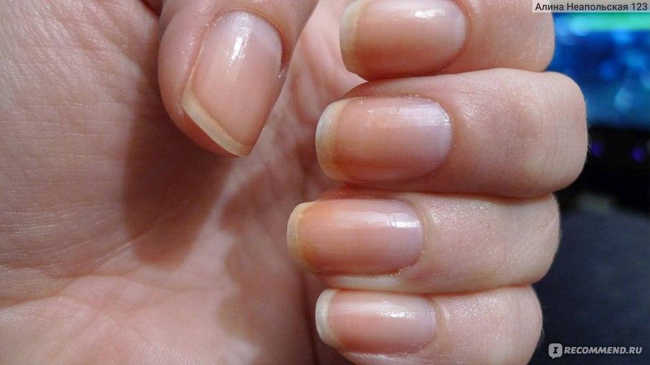 Молочай от грибка ногтей на ногах