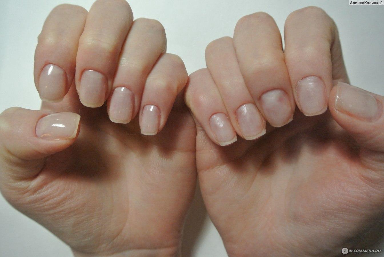 Мои не идеальные ногти
