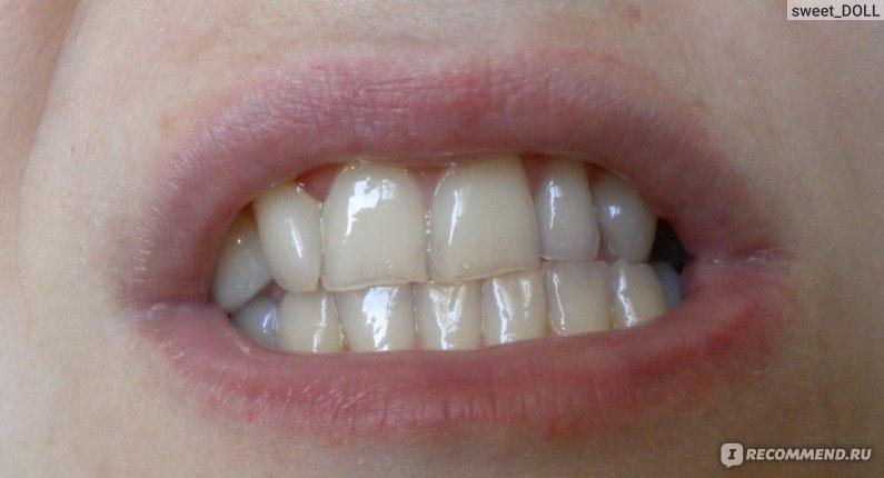 pearlsmile отбеливание зубов отзывы
