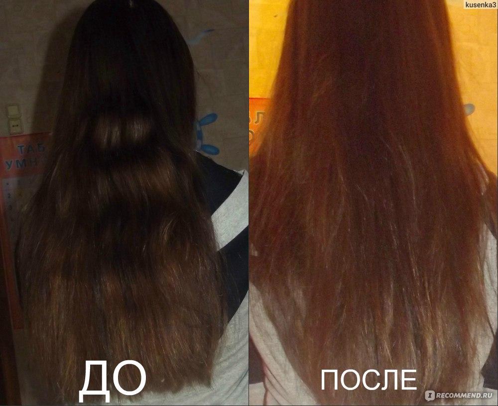 Акупунктура выпадение волос