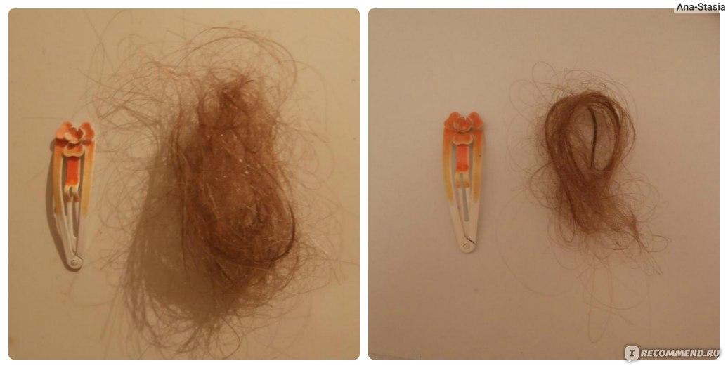 выпадение волос при мытье: до/
