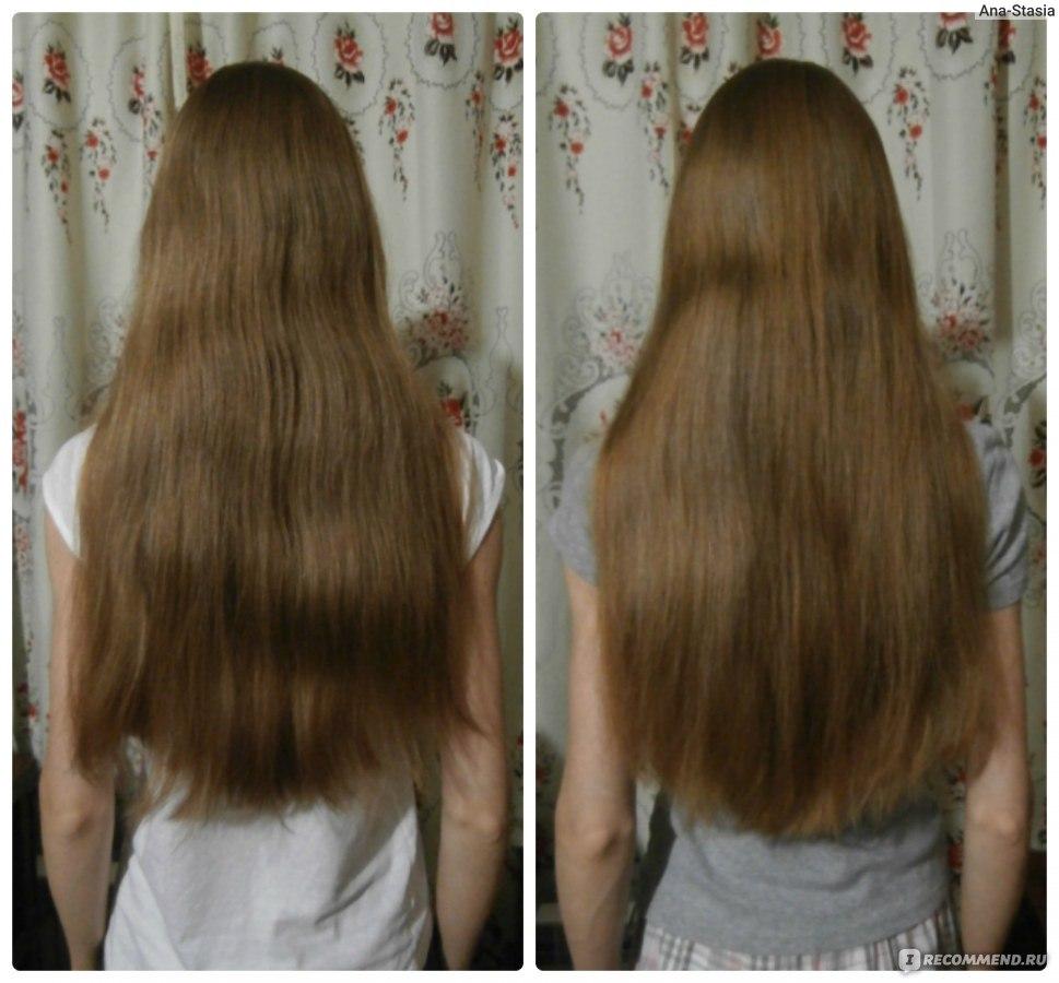 Клайра могут ли выпадать волосы