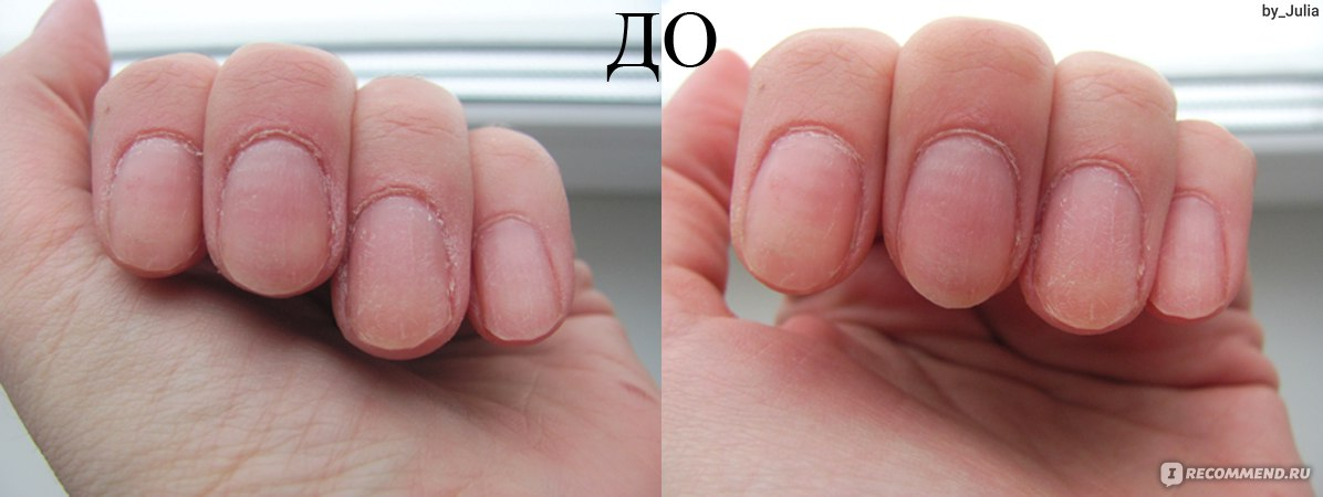 Чем быстро восстановить ногти после наращивания в домашних условиях 192