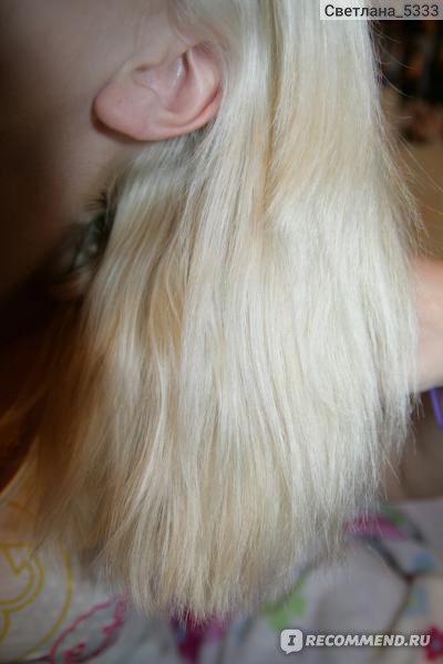 Выпадение волос пятнами на голове