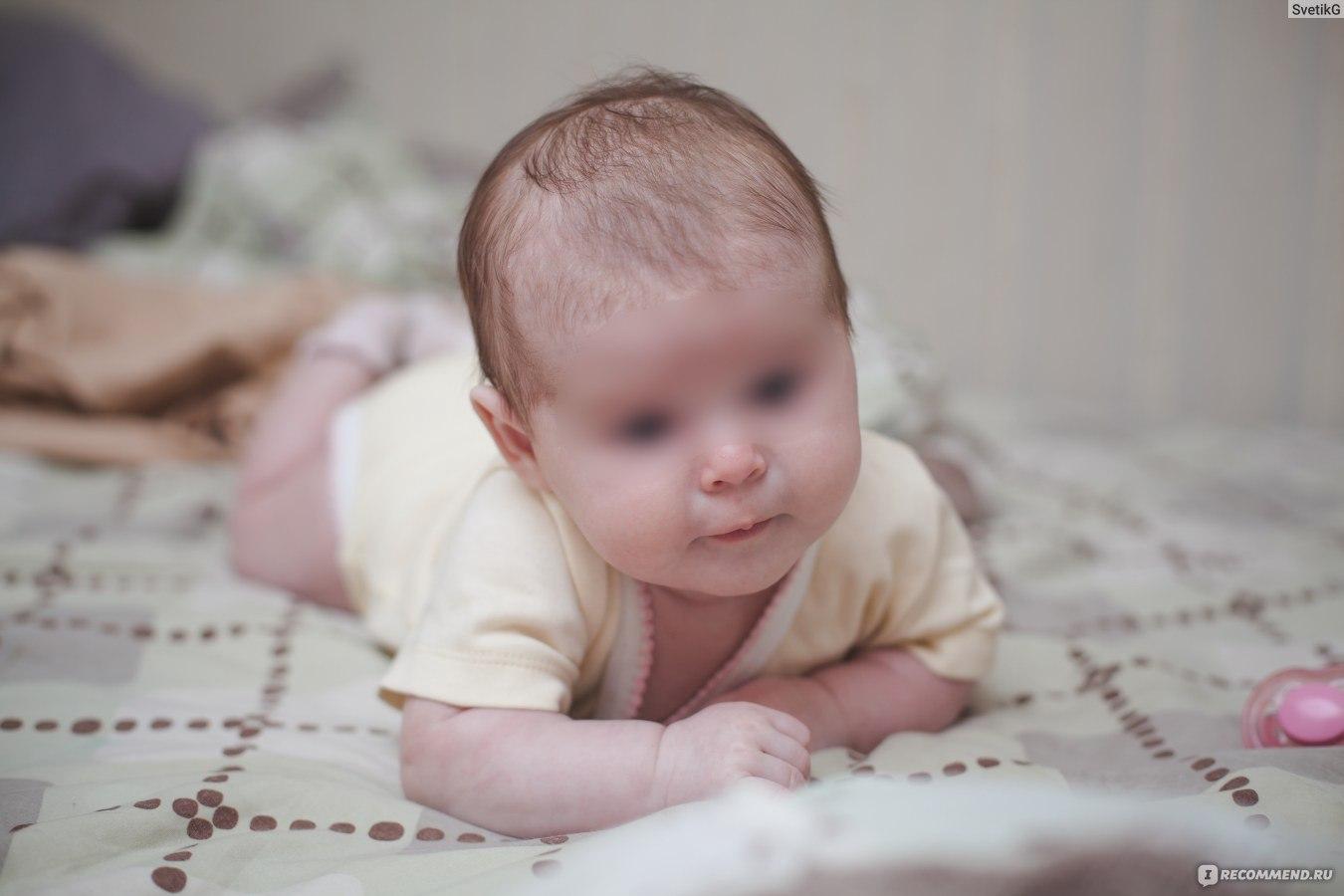 Кривошея у детей трех месяцев