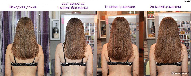 Увеличить рост волос голове домашних условиях