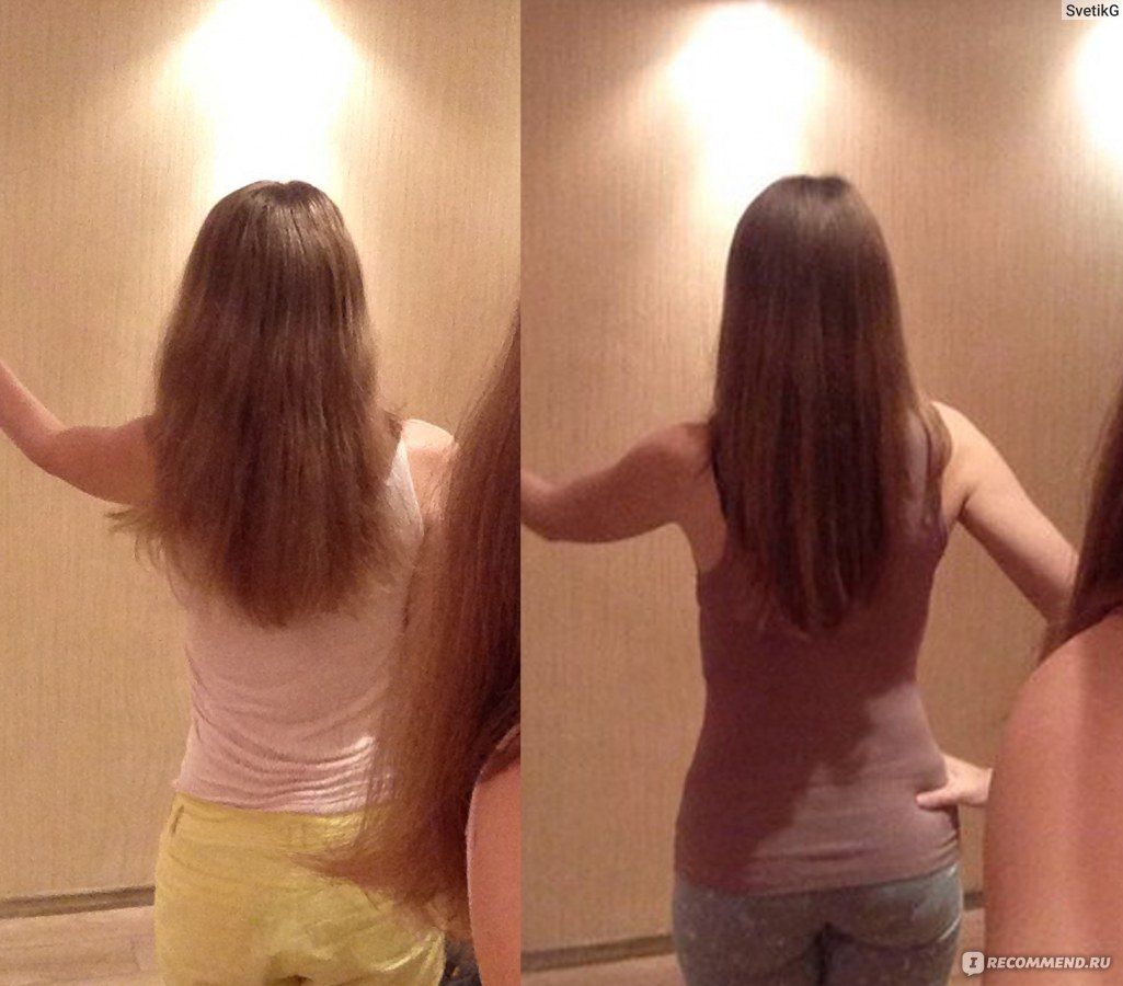 очага заболевания мое отращивание волос фото до и после подбор цвета сможет