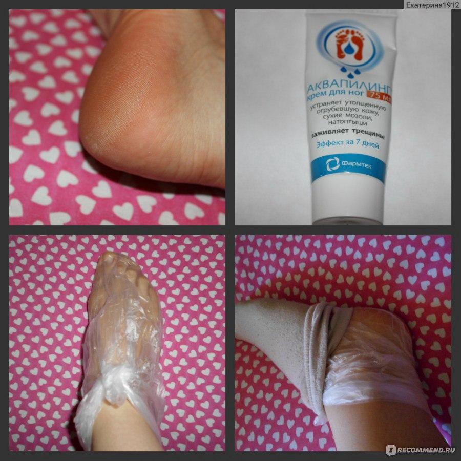 Крем для ног ФАРМТЕК Аквапилинг | Отзывы покупателей