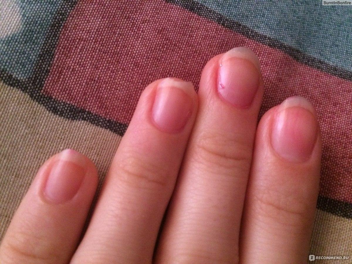 Как сделать чтобы быстро росли ногти за неделю 928
