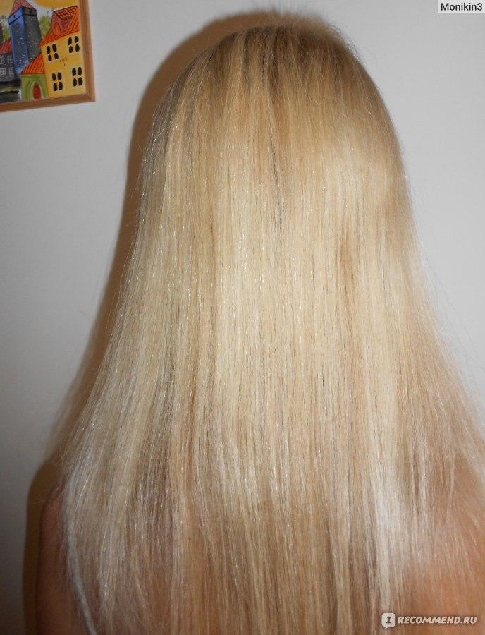 Выпадении волос миноксидил не помогает
