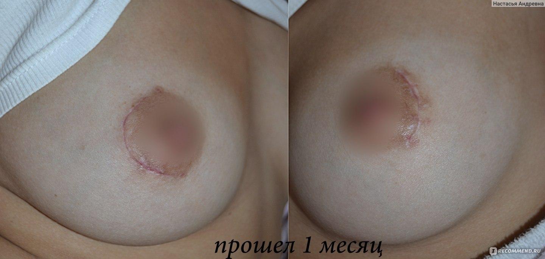 здоровая грудь ореола и фото при