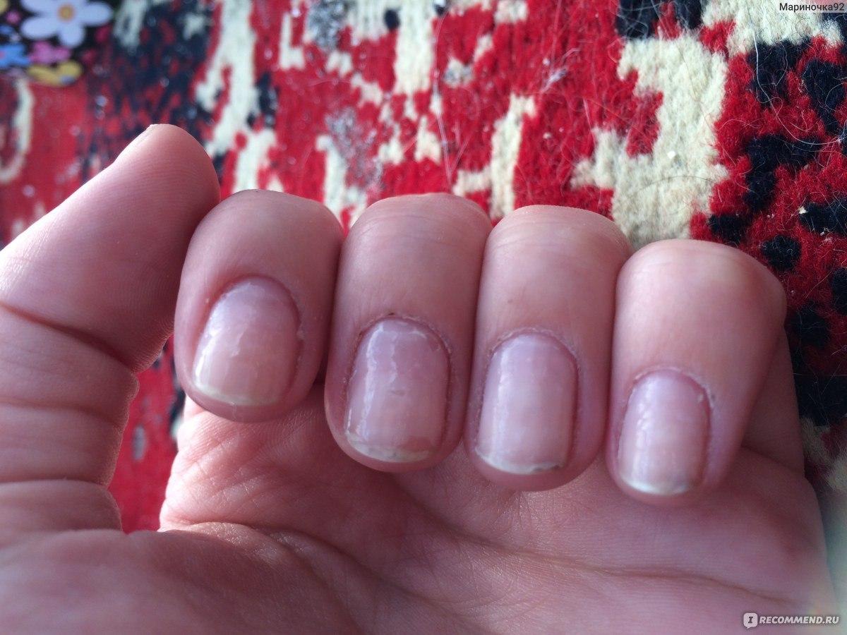 Что такое запечатывание ногтей гель лаком фото