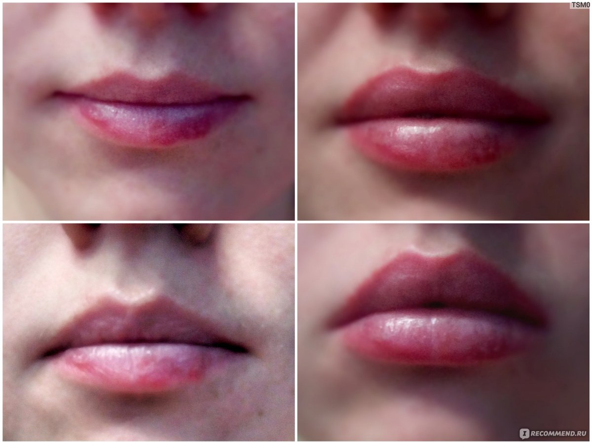 Увеличение губ в домашних условиях народными 583