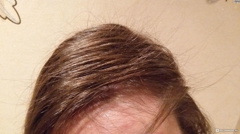 Выпадает много волос с белой луковицей