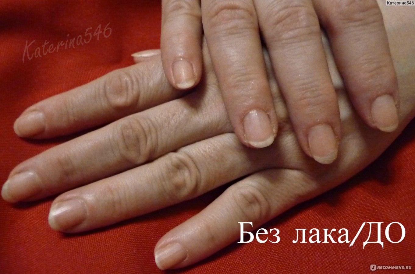 Фото лака для роста ногтей