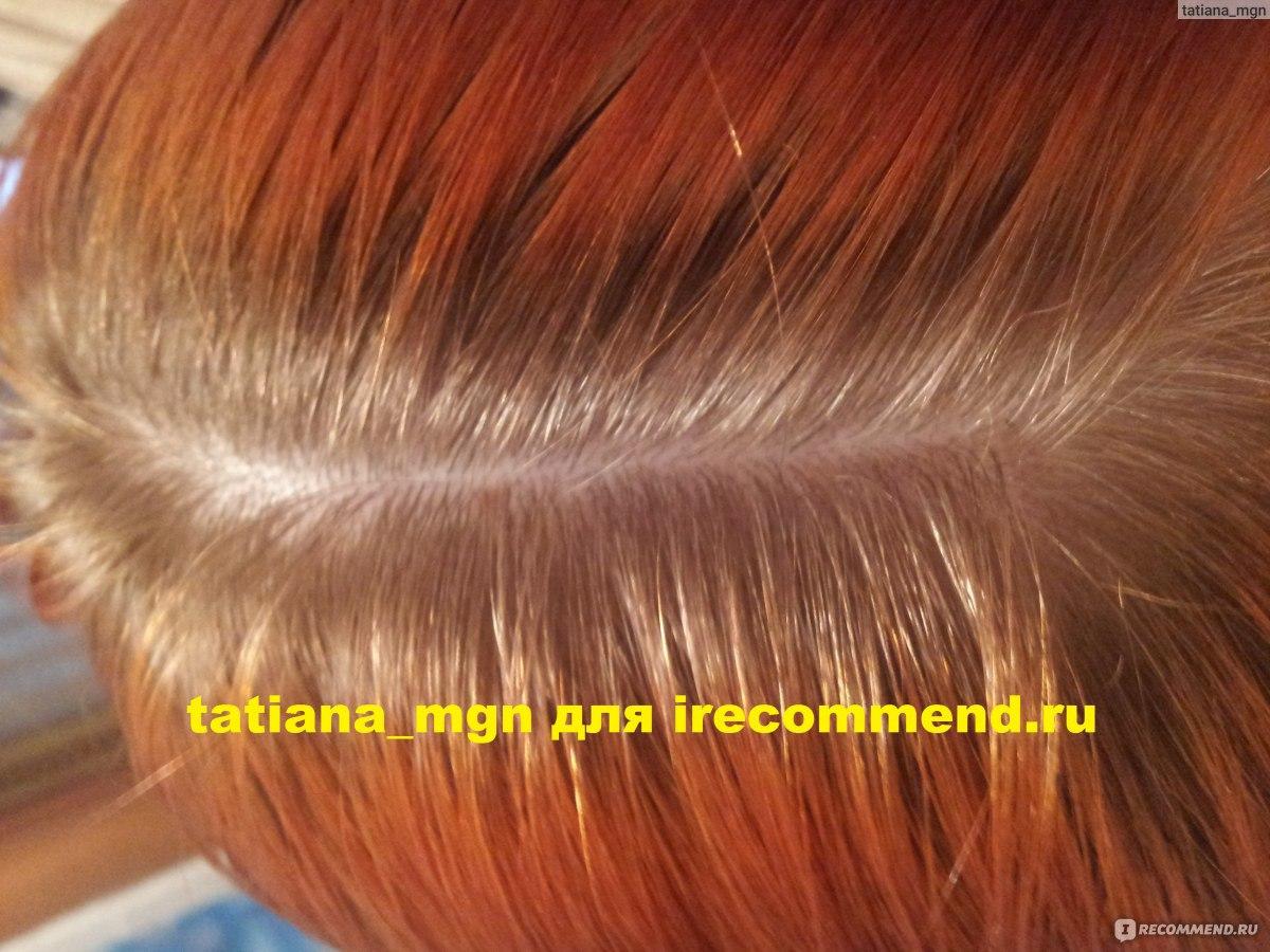 Никотиновая кислота для волос в ампулах: применение, рекомендации, маска для волос с никотинкой, ВолосОК