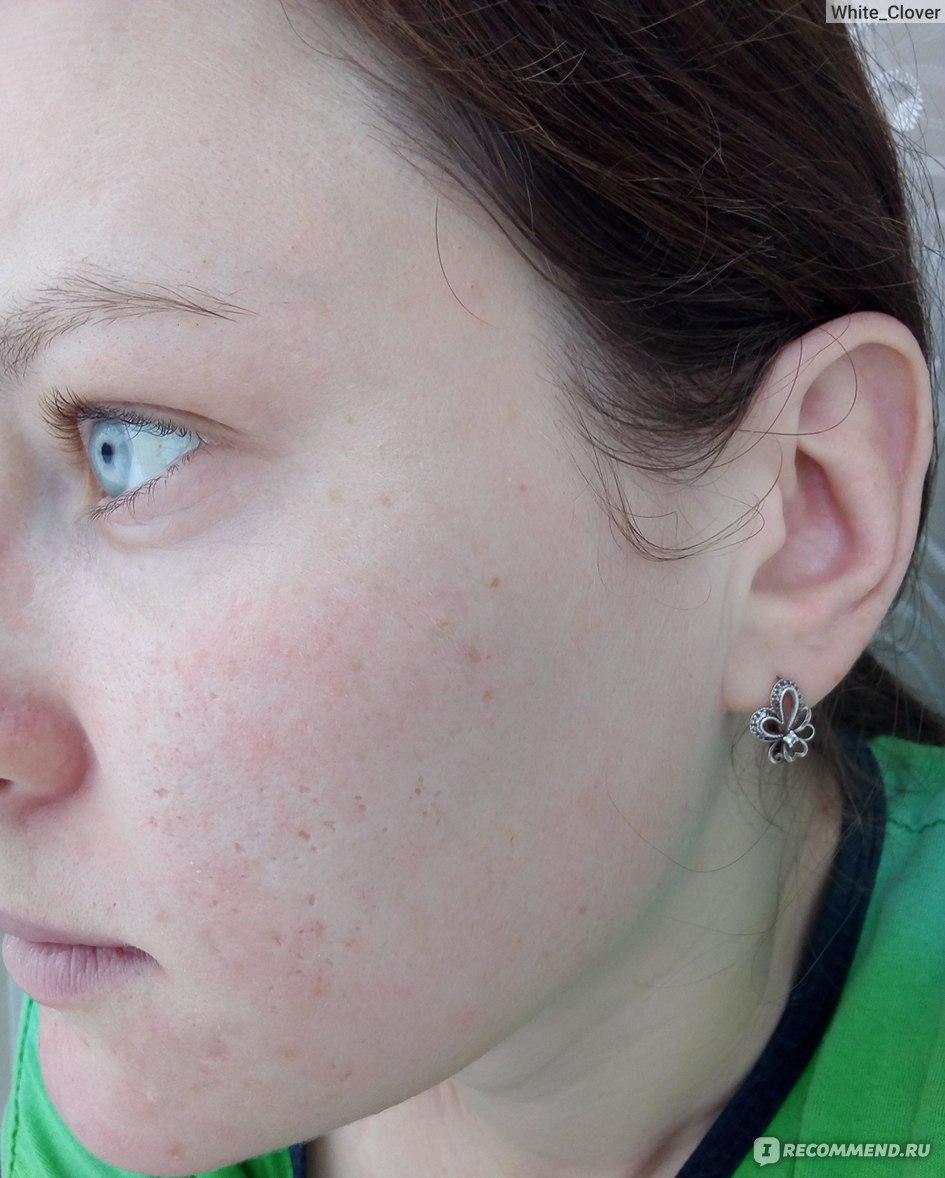 ретиноевая мазь отзывы косметологов