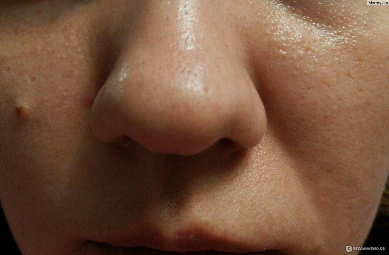 Черные точки на лице (комедоны) причины и избавление в 91
