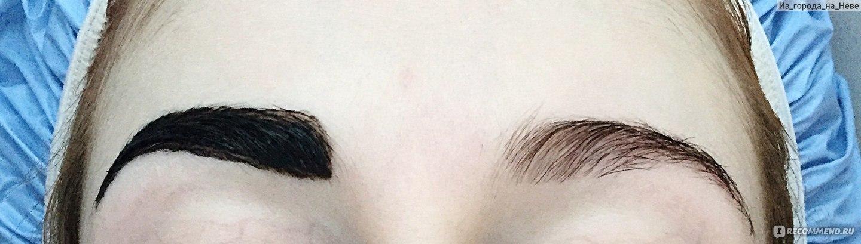 Как сделать чтобы не было синяка под глазом 412