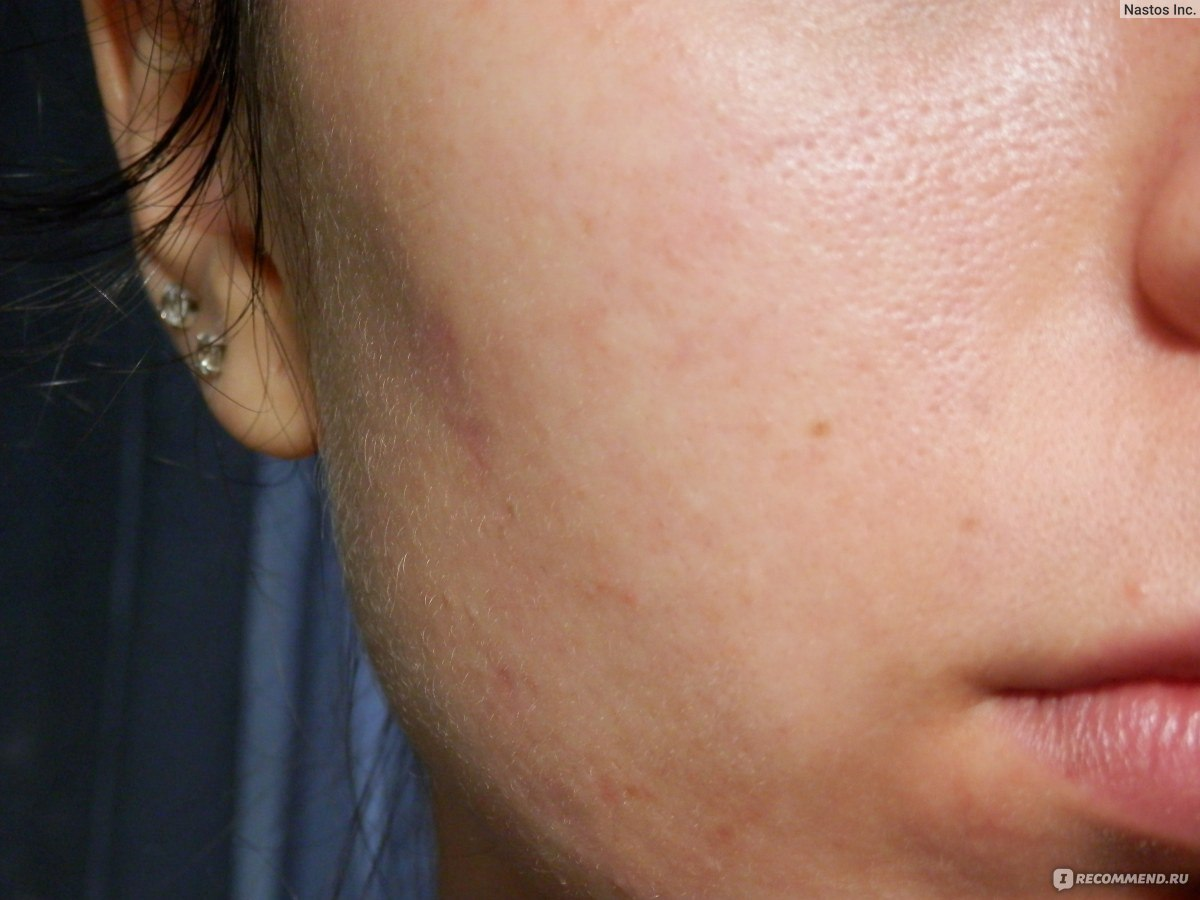 Бензилбензоат при демодекозе лица