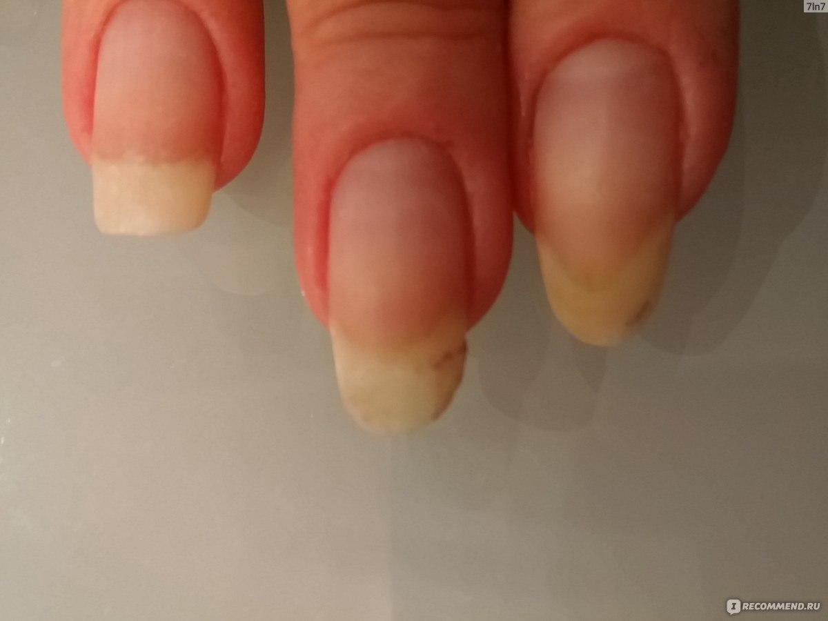 Чтобы ногти не ломались и не слоились: рецепты - Единственная 12
