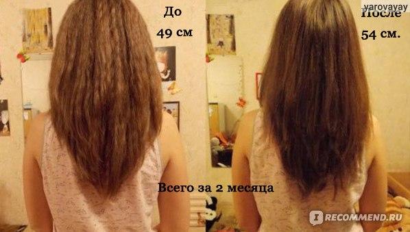 Natura siberica комплекс масел облепиховый для роста волос