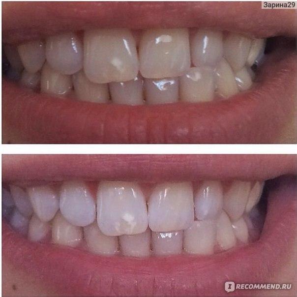 отбеливание зубов за и против отзывы