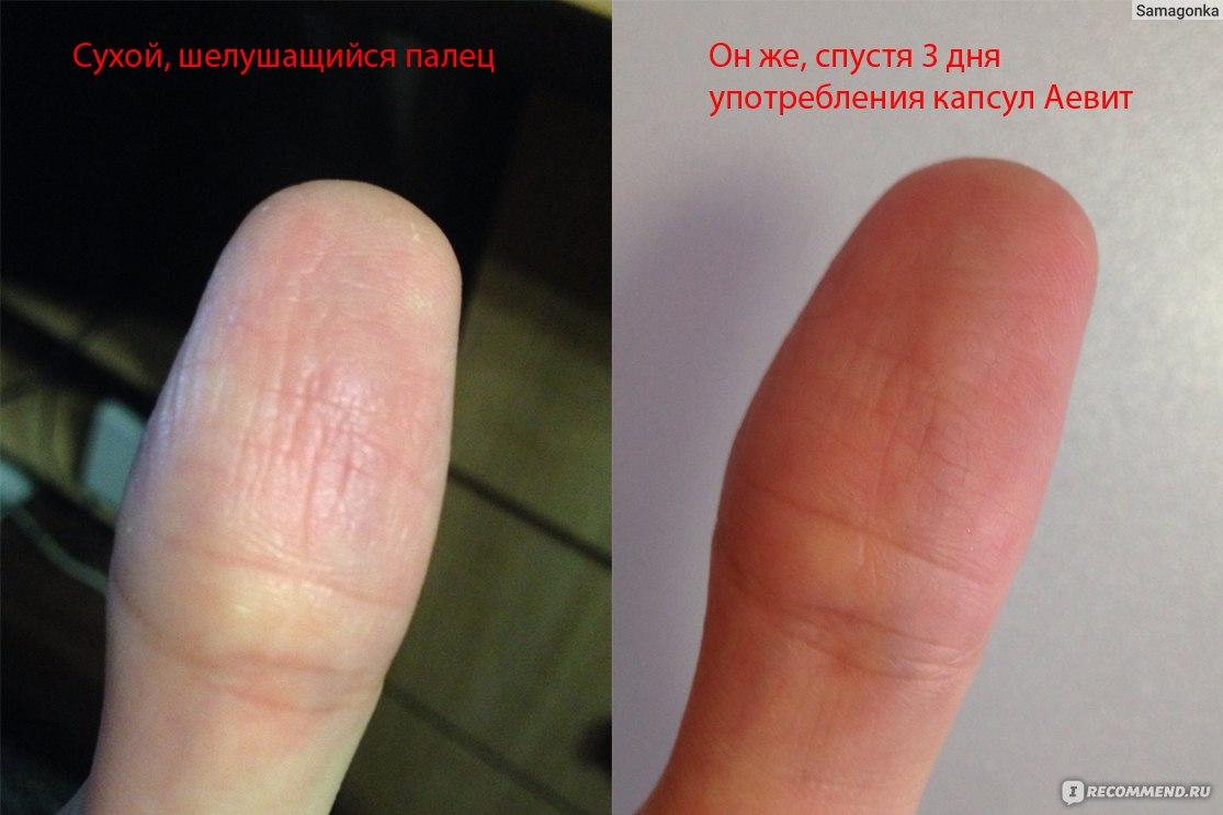 psoriaz-simptomi-na-paltsah-ruk