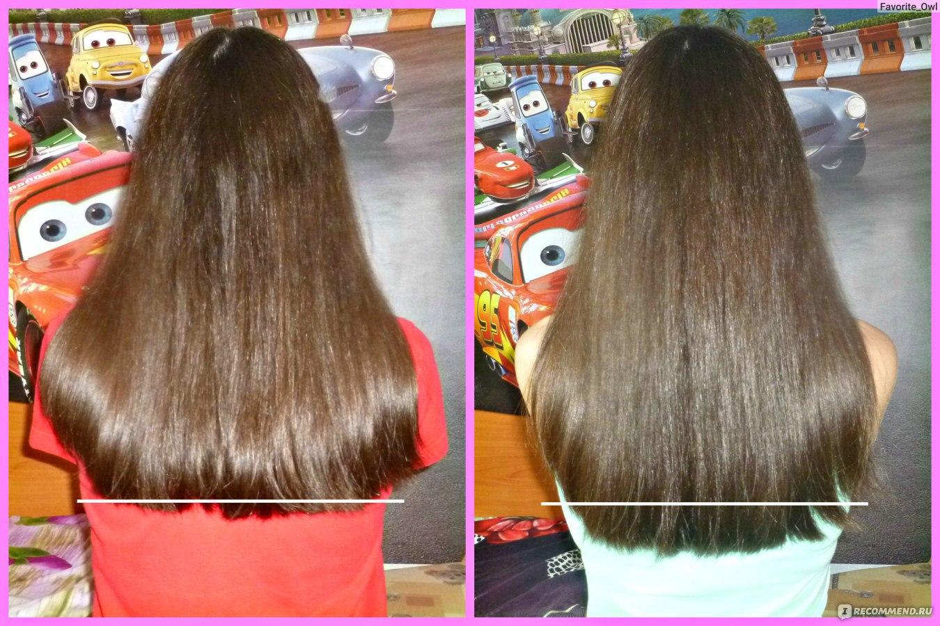 Что лучше использовать для роста волос