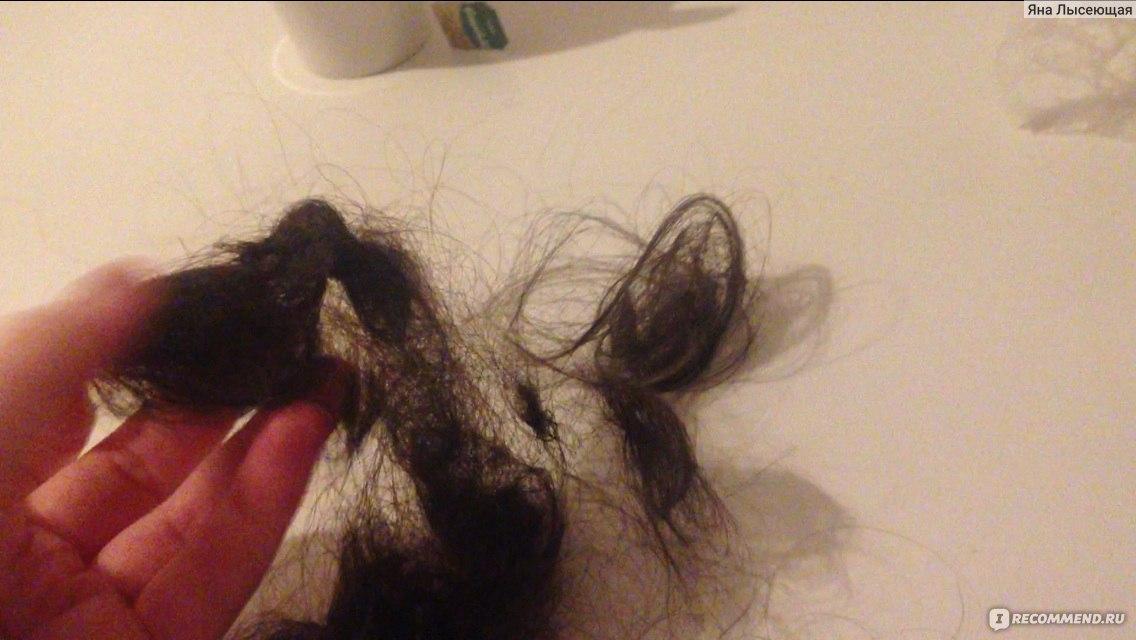 Выпадают волосы сильно луковица белая