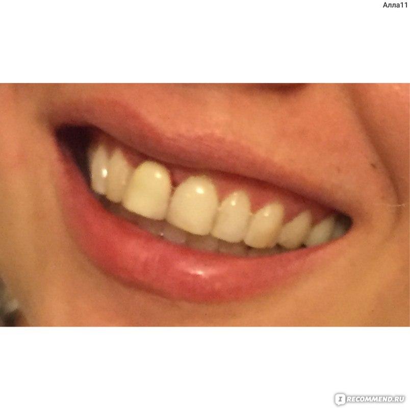 Как отбеливать зубной протез в домашних условиях 946
