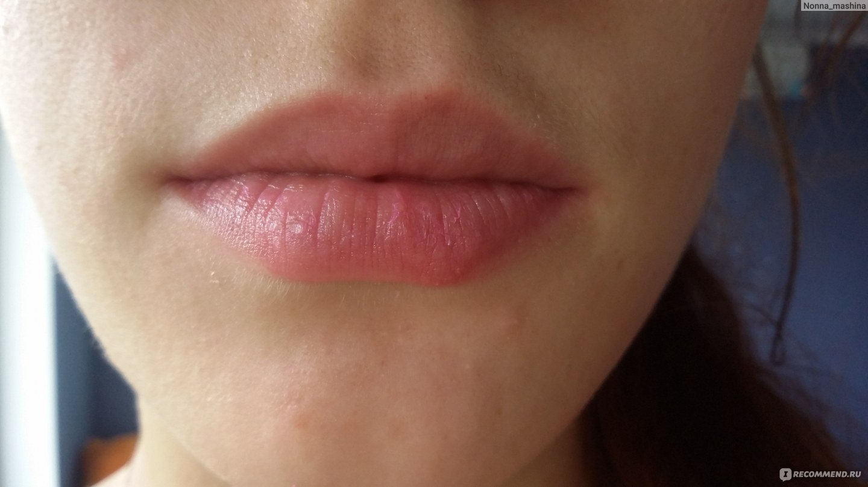 Чем мазать губы в домашних условиях 512