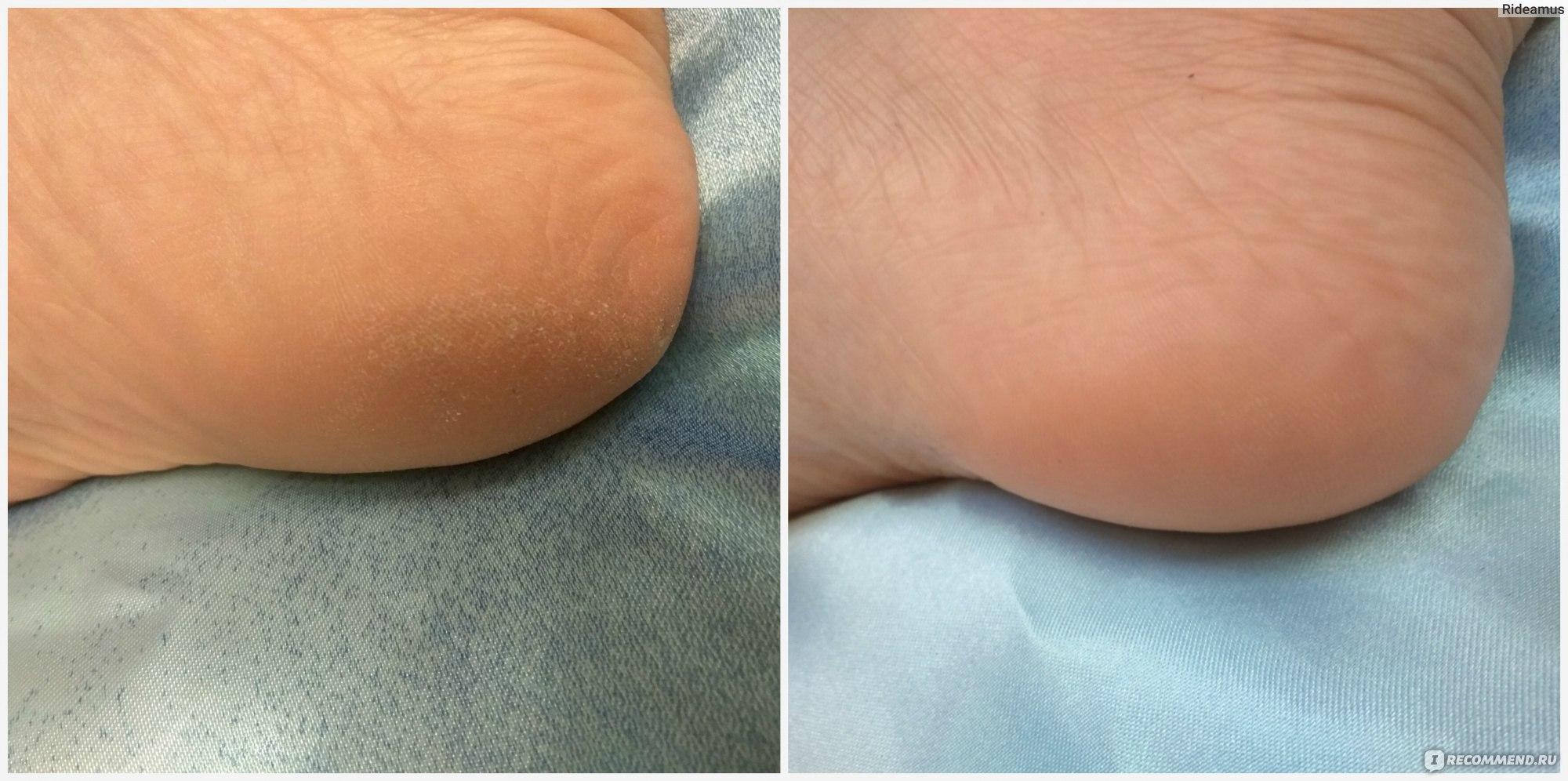 Пилинг для ног: лучшие рецепты для красоты и здоровья кожи стоп и пальцев