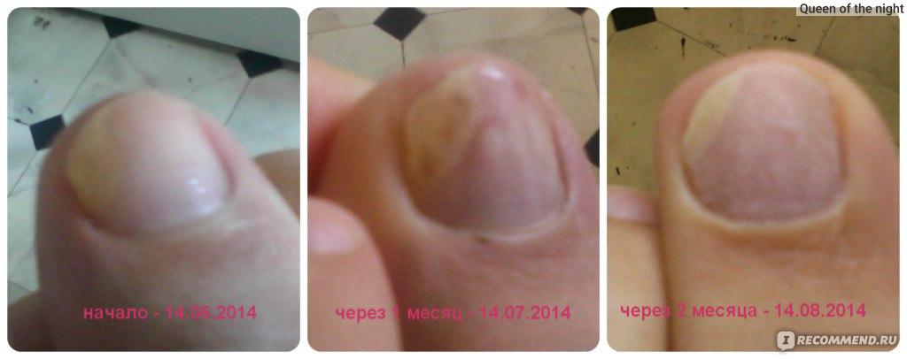 Как лечить грибок ногтей с экзодерилом