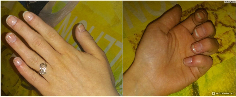 Как из некрасивой формы ногтей сделать красивую форму