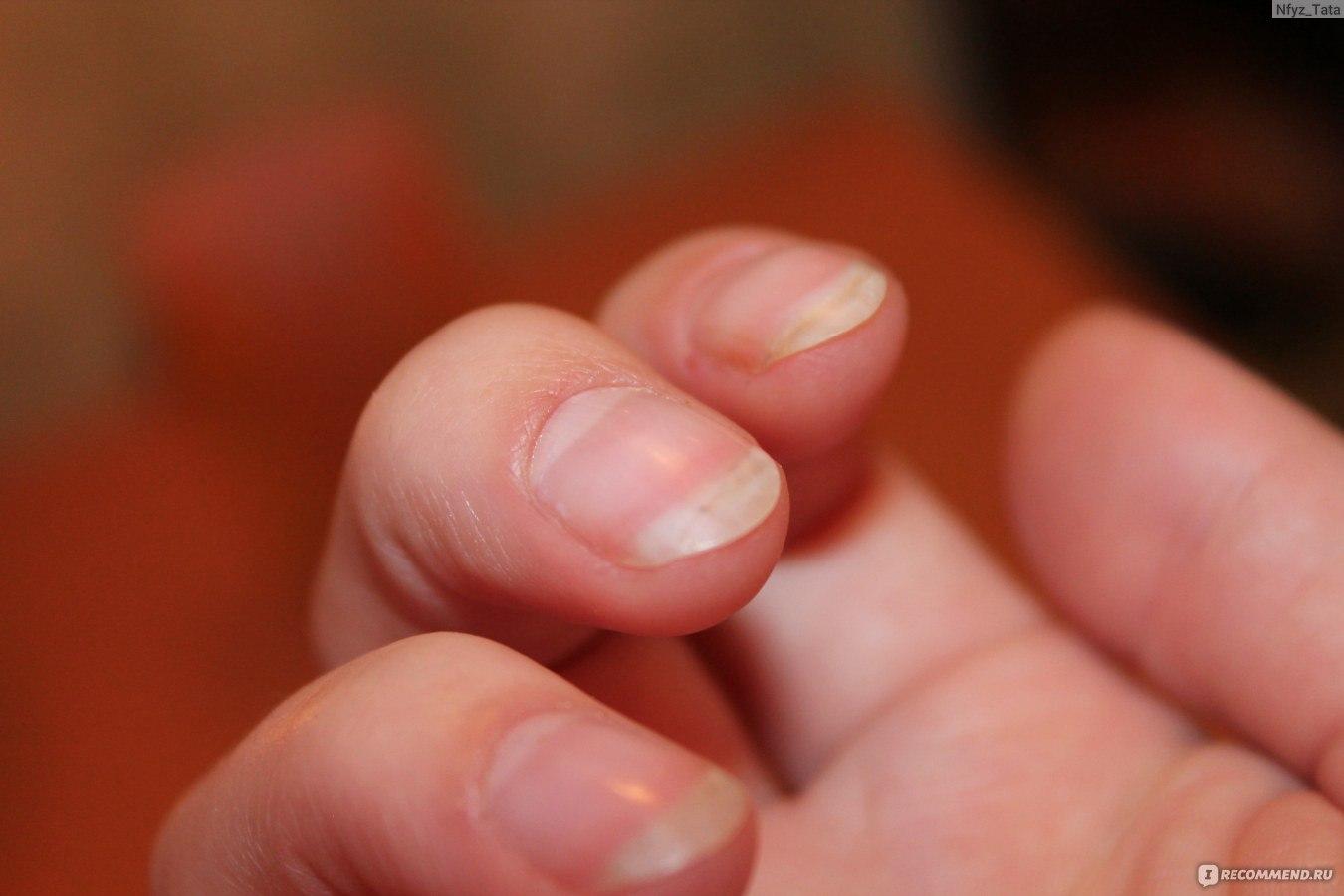 Чтобы ногти не ломались и не слоились: рецепты - Единственная 9