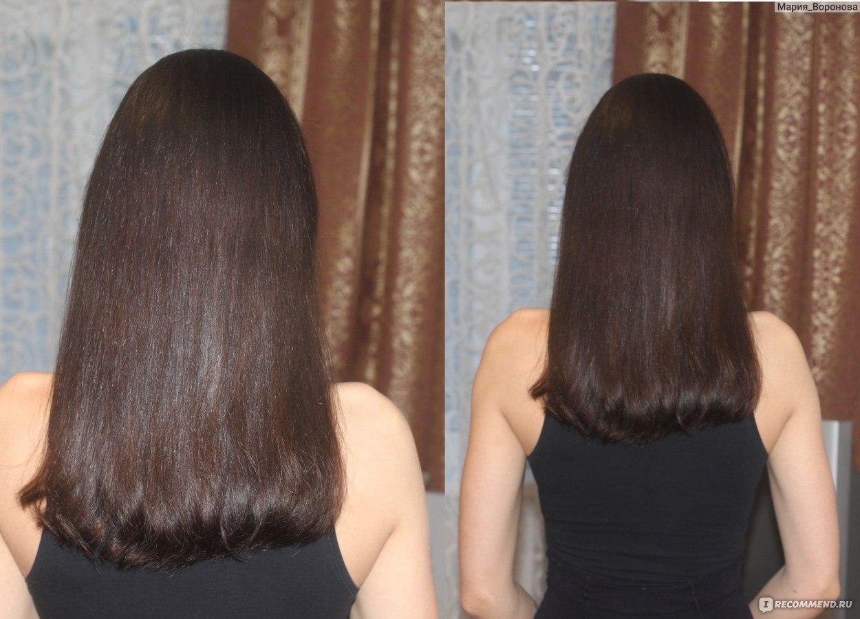шампуни виши для роста волос
