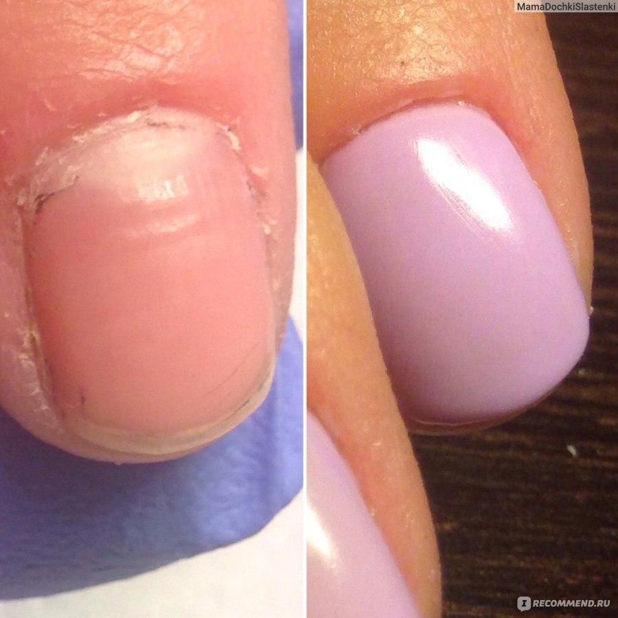 Как не сделать пропил на ногте